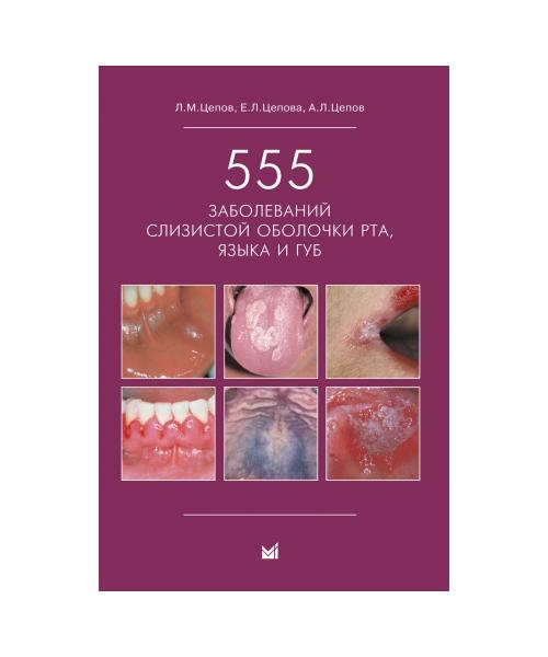 555 заболеваний слизистой оболочки рта, языка и губ. 3-е издание