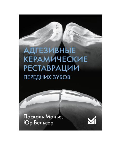 Адгезивные керамические реставрации передних зубов.3-е издание.