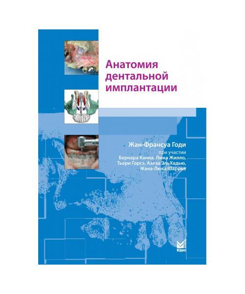 Анатомия дентальной имплантации  1-е издание Перевод франц.