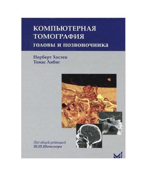 Компьютерная томография головы и позвоночника.  2-е издание