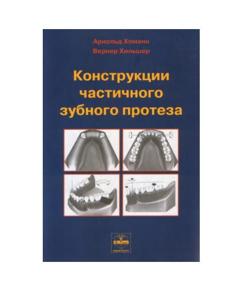 Конструкции частичного зубного протеза