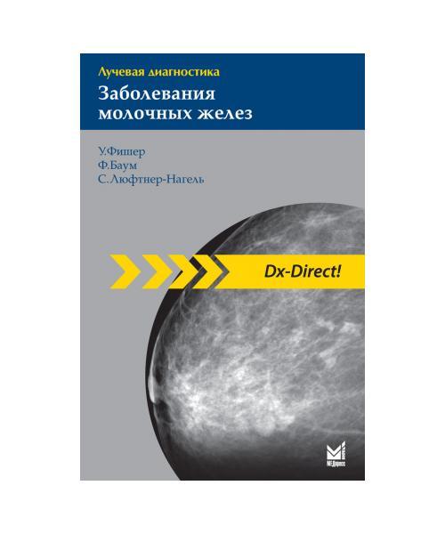 Лучевая диагностика. Заболевания молочных желез 2-е издание.