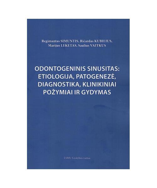 Odontogeninis sinusitas: etiologija,patogenezė,diagnostika,klinikiniai požymiai ir gydymas