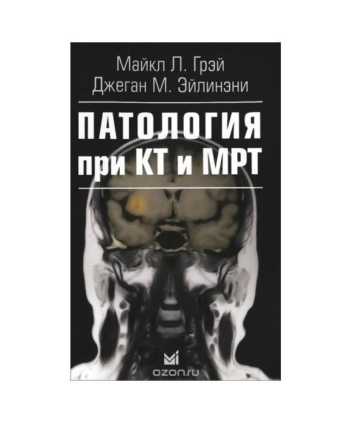 Патология при КТ и МРТ. 2-е издание.