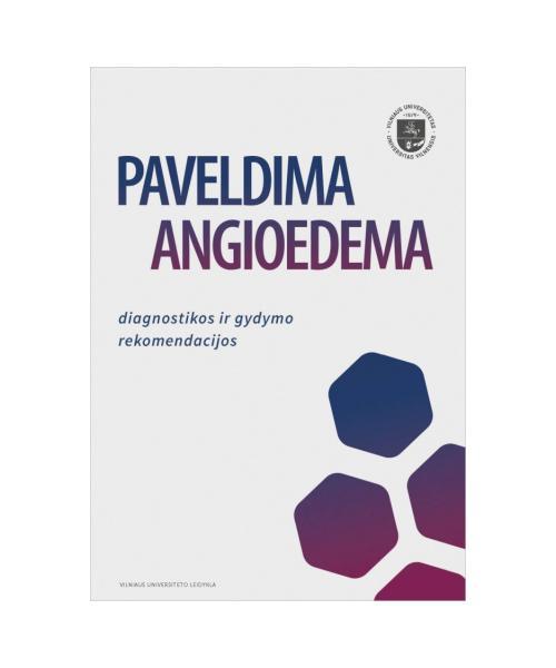 Paveldima angioedema: diagnostikos ir gydymo rekomendacijos