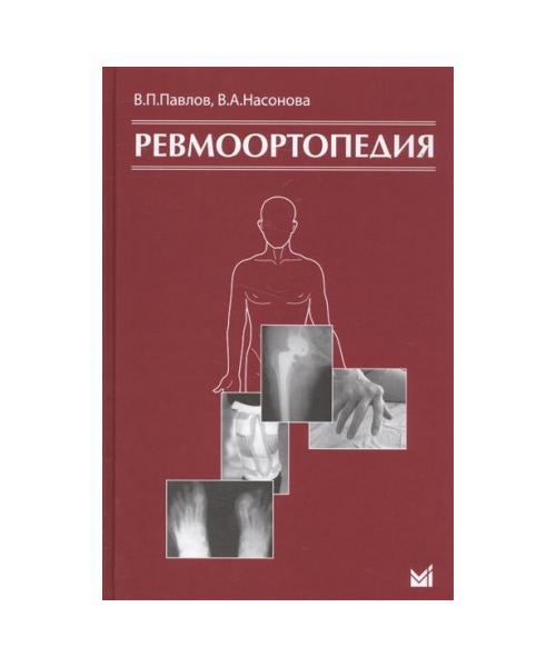 Ревмоортопедия. 2-е издание.