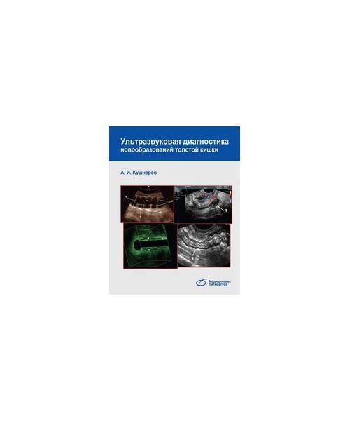 Ультразвуковая диагностика новообразований толстой кишки