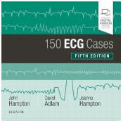 150 ECG Cases 5th Revised edition