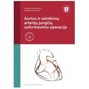 Aortos ir vainikinių arterijų jungčių suformavimo operacija