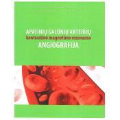 Apatinių galūnių arterijų kontrastinė magnetinio rezonanso angiografija