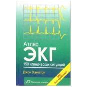 Атлас ЭКГ: 150 клинических ситуаций