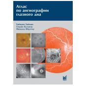 Атлас по ангиографии глазного дна.  1-е издание