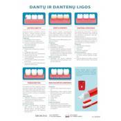 Dantų ir dantenų ligos. Plakatas.