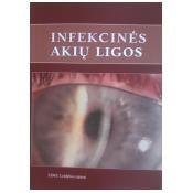 Infekcinės akių ligos. Mokomoji knyga