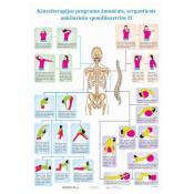 Kineziterapijos programa žmonėms, sergantiems ankiloziniu spondiloartritu II.Plakatas.