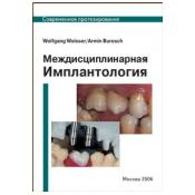 МЕЖДИСЦИПЛИНАРНАЯ ИМПЛАНТОЛОГИЯ (протезирование на имплантатах))