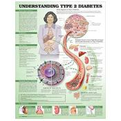 Understanding Type 2 Diabetes Anatomical Chart (paper)