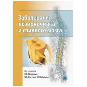 Заболевания позвоночника и спинного мозга